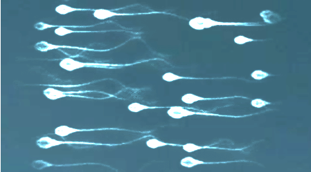 试管婴儿专家是怎么选择胚胎质量的?-华夏试管网