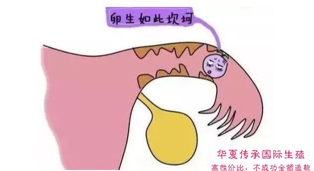 """【科普】做""""试管婴儿""""还会""""宫外孕""""?-华夏试管网"""