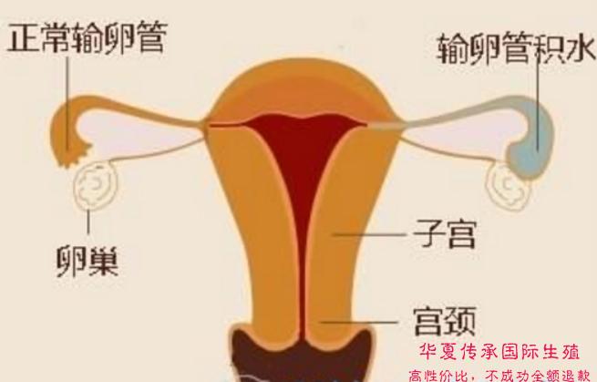 独家揭秘:人工授精过程中不为人知的细节-华夏试管网