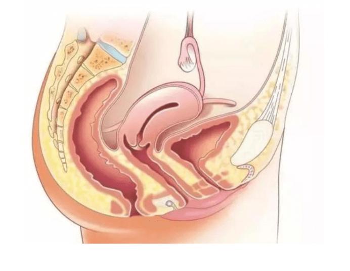 凤凰资讯:子宫腺肌症要想怀孕,这几点必须注意-华夏试管网