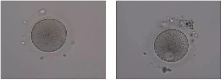 探秘试管婴儿——胚胎实验室-华夏试管网
