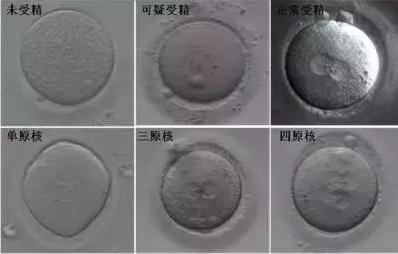 试管婴儿为什么不是取卵多少就能受精多少呢-华夏试管网