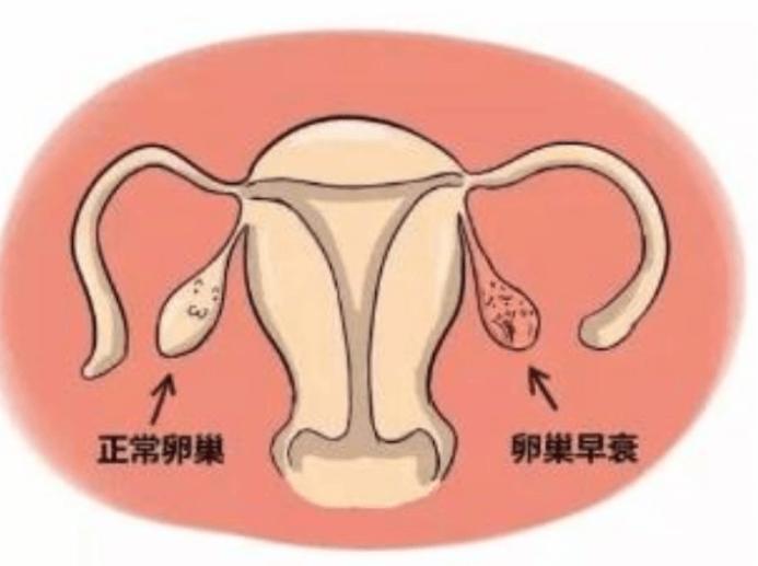 女人月经提前是卵巢早衰的症状吗?也许是这3种病在提醒你-华夏试管网